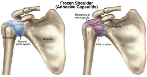 Синдром «замороженного плеча»