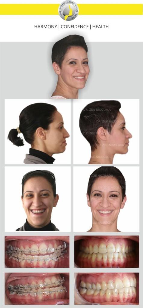 facial maxillo surgeon